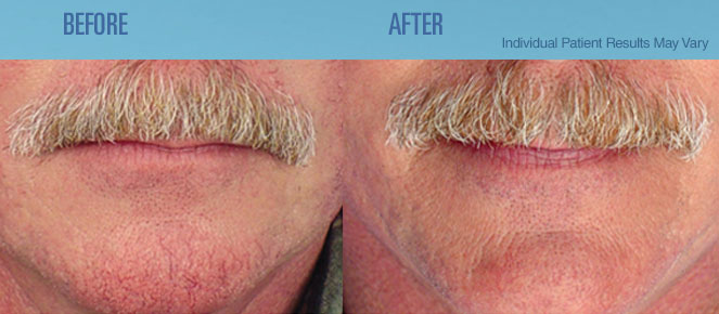 Dr Vick S La Medical Spa Laser Bbl Rosacea Therapy